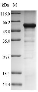 GNAZ Protein - (Tris-Glycine gel) Discontinuous SDS-PAGE (reduced) with 5% enrichment gel and 15% separation gel.