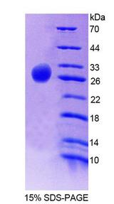 GNAZ Protein - Recombinant G Protein Alpha Z By SDS-PAGE