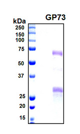 GOLM1 / GP73 / GOLPH2 Protein - SDS-PAGE under reducing conditions and visualized by Coomassie blue staining