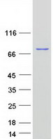 GPNMB / Osteoactivin Protein - Purified recombinant protein GPNMB was analyzed by SDS-PAGE gel and Coomassie Blue Staining