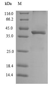 GPR49 / LGR5 Protein - (Tris-Glycine gel) Discontinuous SDS-PAGE (reduced) with 5% enrichment gel and 15% separation gel.
