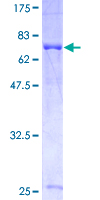 GPS1 / CSN1 Protein - 12.5% SDS-PAGE of human GPS1 stained with Coomassie Blue