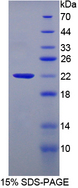 GPT / Alanine Transaminase Protein - Recombinant  Amy1 Associated Protein Expressed In Testis By SDS-PAGE