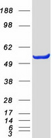 GPT / Alanine Transaminase Protein - Purified recombinant protein GPT was analyzed by SDS-PAGE gel and Coomassie Blue Staining
