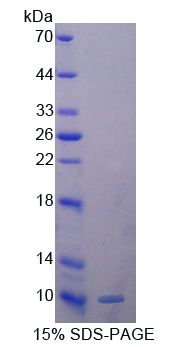 GPX3 Protein - Recombinant  Glutathione Peroxidase 3, Plasma By SDS-PAGE
