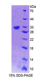 GRIK2 / GLUR6 Protein - Recombinant Glutamate Receptor, Ionotropic, Kainate 2 By SDS-PAGE