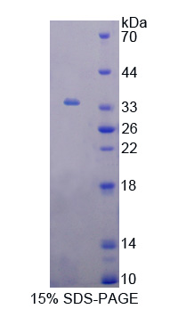 GRK6 Protein - Recombinant  G Protein Coupled Receptor Kinase 6 By SDS-PAGE