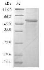 GSTA2 Protein - (Tris-Glycine gel) Discontinuous SDS-PAGE (reduced) with 5% enrichment gel and 15% separation gel.