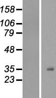 H1F0 Protein - Western validation with an anti-DDK antibody * L: Control HEK293 lysate R: Over-expression lysate