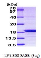 H3F3A Protein