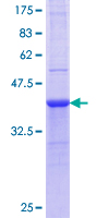 HAAO Protein - 12.5% SDS-PAGE Stained with Coomassie Blue