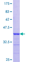HAX-1 Protein - 12.5% SDS-PAGE Stained with Coomassie Blue.