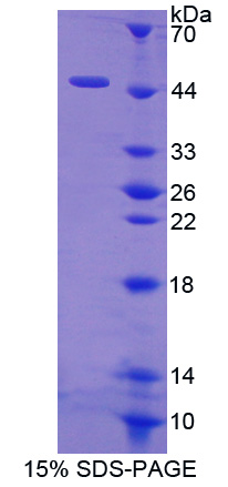 HBD / Hemoglobin Delta Protein - Recombinant  Hemoglobin Delta By SDS-PAGE