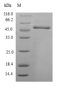 HCCS Protein - (Tris-Glycine gel) Discontinuous SDS-PAGE (reduced) with 5% enrichment gel and 15% separation gel.