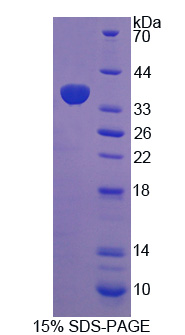 HCCS Protein - Recombinant Holocytochrome C Synthase By SDS-PAGE