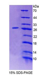 HCF1 / HCFC1 Protein - Recombinant Host Cell Factor C1 By SDS-PAGE