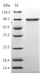 HDAC11 Protein - (Tris-Glycine gel) Discontinuous SDS-PAGE (reduced) with 5% enrichment gel and 15% separation gel.