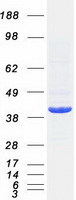 HDAC11 Protein - Purified recombinant protein HDAC11 was analyzed by SDS-PAGE gel and Coomassie Blue Staining