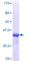 HDAC4 Protein - 12.5% SDS-PAGE Stained with Coomassie Blue.
