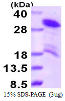 HDGFRP3 Protein