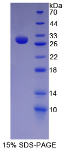 HES1 / HES-1 Protein - Recombinant  Hairy And Enhancer Of Split 1 By SDS-PAGE