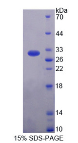 HIP1R Protein - Recombinant  Huntingtin Interacting Protein 12 By SDS-PAGE