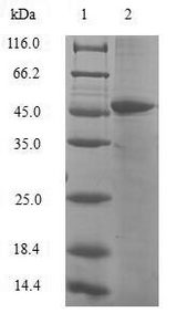 HIST1H3D Protein - (Tris-Glycine gel) Discontinuous SDS-PAGE (reduced) with 5% enrichment gel and 15% separation gel.