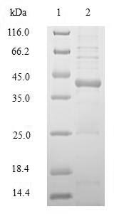 HLA-DRB1 Protein - (Tris-Glycine gel) Discontinuous SDS-PAGE (reduced) with 5% enrichment gel and 15% separation gel.
