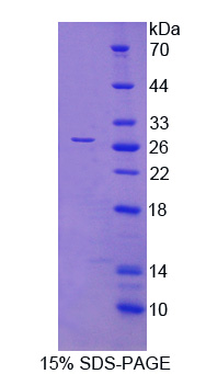 HLA-DRB1 Protein - Recombinant Major Histocompatibility Complex Class II DR Beta 1 By SDS-PAGE