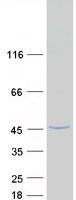 HMCES / C3orf37 Protein - Purified recombinant protein HMCES was analyzed by SDS-PAGE gel and Coomassie Blue Staining