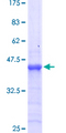 HOXB13 Protein - 12.5% SDS-PAGE Stained with Coomassie Blue.