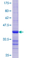 HR6B / UBE2B Protein - 12.5% SDS-PAGE Stained with Coomassie Blue.