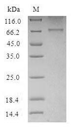 HTR2B / 5-HT2B Receptor Protein - (Tris-Glycine gel) Discontinuous SDS-PAGE (reduced) with 5% enrichment gel and 15% separation gel.