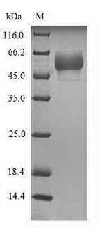 HTR3E / 5-HT3E Receptor Protein - (Tris-Glycine gel) Discontinuous SDS-PAGE (reduced) with 5% enrichment gel and 15% separation gel.