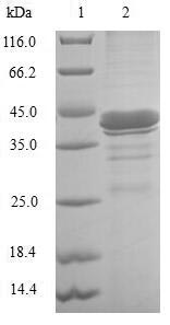 I-BABP / FABP6 Protein - (Tris-Glycine gel) Discontinuous SDS-PAGE (reduced) with 5% enrichment gel and 15% separation gel.