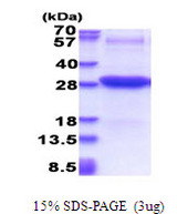 ICAM2 / CD102 Protein