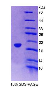ICAM3 / CD50 Protein - Recombinant Intercellular Adhesion Molecule 3 By SDS-PAGE