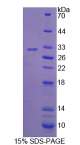 IFI30 / IP30 Protein - Recombinant Interferon Gamma Inducible Protein 30 By SDS-PAGE