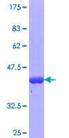 IFT57 / HIPPI Protein - 12.5% SDS-PAGE Stained with Coomassie Blue.