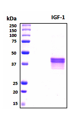 IGF1 Protein - SDS-PAGE under reducing conditions and visualized by Coomassie blue staining