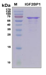 IGF2BP2 Protein - SDS-PAGE under reducing conditions and visualized by Coomassie blue staining