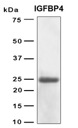 IGFBP4 Protein - SDS-PAGE under reducing conditions and visualized by Coomassie blue staining