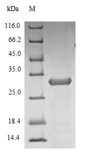 IL-1B / IL-1 Beta Protein - (Tris-Glycine gel) Discontinuous SDS-PAGE (reduced) with 5% enrichment gel and 15% separation gel.