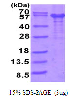 IL12RB1 / CD212 Protein