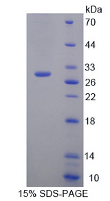 IL17RC Protein - Recombinant  Interleukin 17 Receptor C By SDS-PAGE