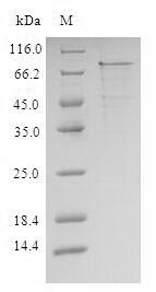 IL1R1 Protein - (Tris-Glycine gel) Discontinuous SDS-PAGE (reduced) with 5% enrichment gel and 15% separation gel.