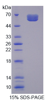 IL20RA Protein - Recombinant Interleukin 20 Receptor Alpha By SDS-PAGE