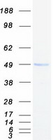 IL3RA / CD123 Protein - Purified recombinant protein IL3RA was analyzed by SDS-PAGE gel and Coomassie Blue Staining
