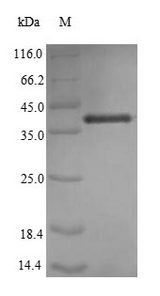 IL7 Protein - (Tris-Glycine gel) Discontinuous SDS-PAGE (reduced) with 5% enrichment gel and 15% separation gel.