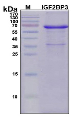 IMP-3 / IGF2BP3 Protein - SDS-PAGE under reducing conditions and visualized by Coomassie blue staining